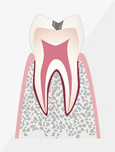 虫歯治療 C1