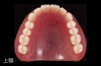 保険適用の義歯(入れ歯)上顎