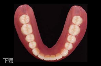 保険適用の義歯(入れ歯)下顎