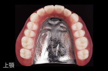 自費診療の義歯(入れ歯)上顎