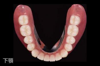 自費診療の義歯(入れ歯)下顎