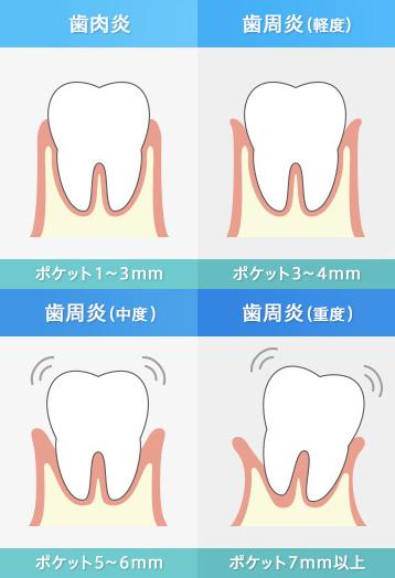 歯周病の経過(歯周炎)